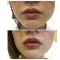 губы 2